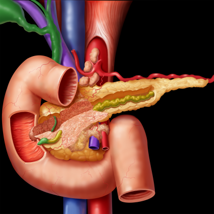 Efficacy of pancreatic enzyme replacement therapy in chronic pancreatitis:meta-analysis