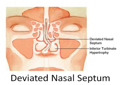 Deviated Nasal Septum  : Standard Treatment Guidelines