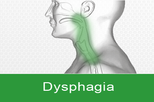 Approach To Dysphagia - Standard Treatment Guidelines