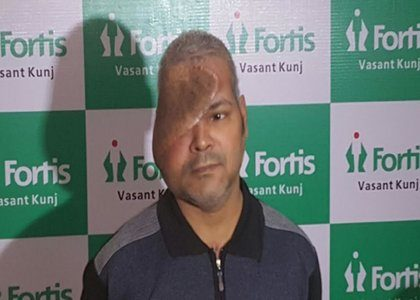 New Delhi: Fortis Doctors perform 16 hour anterior craniofacial resection surgery