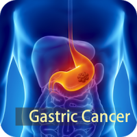 Potential gastric cancer biomarker which could help in early diagnosis identified