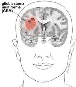 New treatment for Glioblastoma multiforme