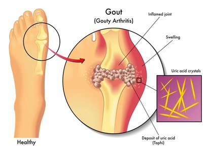Dual Energy CT scan offers high diagnostic accuracy in established gout