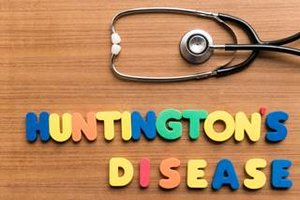 Huntington's disease related to dysfunction in brain structure