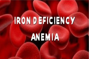Iron deficiency anemia associated with hearing loss: JAMA