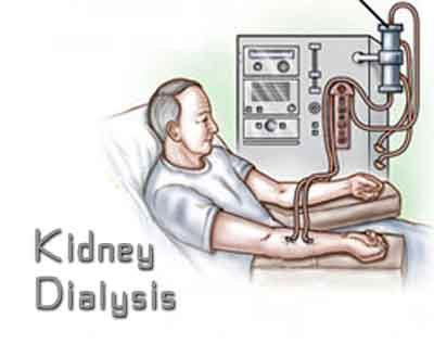 World first MRI study sheds light on heart damage during kidney dialysis