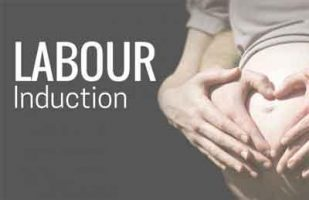 Inducing labor at 39 weeks reduces probability of C sections, complications
