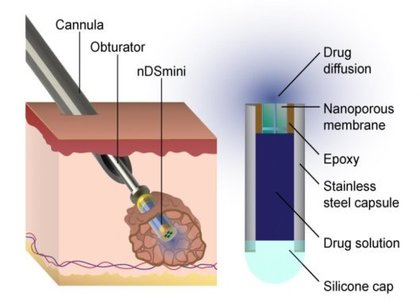 New minimally invasive device to treat cancer and other illnesses