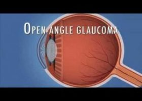 Hydrus microstent reduces IOP and medicine need in glaucoma patients, finds Study
