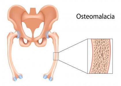 Osteomalacia - Standard Treatment Guidelines