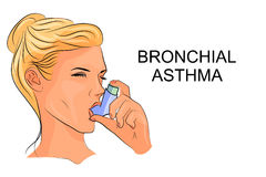 Bronchial Asthma – Standard Treatment Guidelines