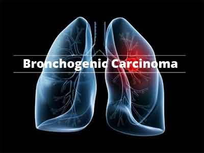 Bronchial carcinoma: Added benefit of crizotinib not proven