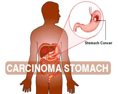 Carcinoma Stomach- Standard Treatment Guidelines