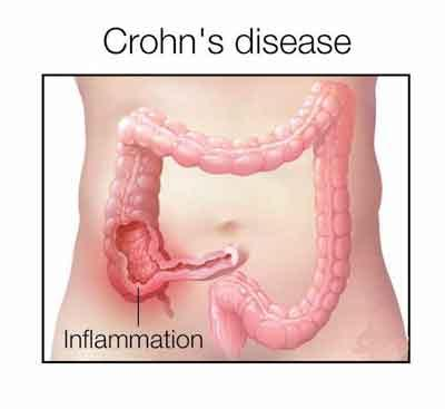Crohn's disease risk and prognosis determined by different genes