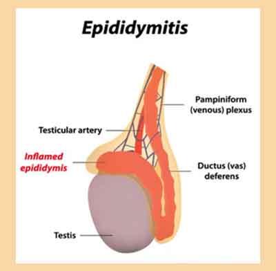 Epididymiitti