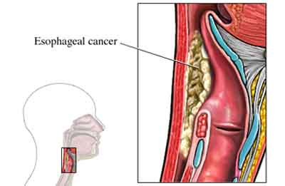 Esophageal cancer-Standard Treatment Guidelines