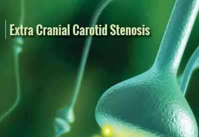 Extra Cranial Carotid Stenosis-Standard Treatment Guidelines