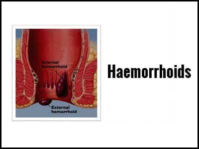 Haemorrhoids – Standard Treatment Guidelines