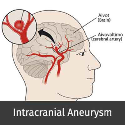 Intracranial Aneurysm-Standard Treatment Guidelines