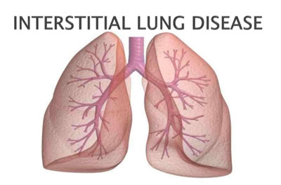 Interstitial Lung Disease – Standard Treatment Guidelines