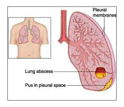 Lung Abscess Standard Treatment Guidelines Speciality