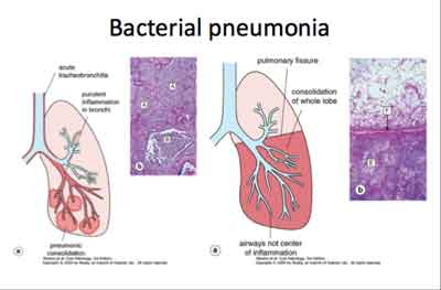Community Acquired Pneumonia ,Bacterial-Standard Treatment Guidelines