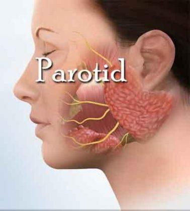 Parotid Neoplasms – Standard Treatment Guidelines