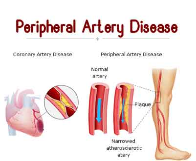 peripheral arterial disease Lifestyle changes and medications can be a big help for peripheral arterial disease when these aren't enough, learn about your treatment options here.
