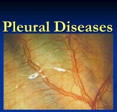 Pleural Diseases – Standard Treatment Guidelines