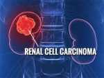 Renal Cell Carcinoma-Standard Treatment Guidelines