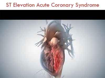 Diagnosis, Treatment of ST Elevation Acute Coronary syndrome- Indian Consensus Document