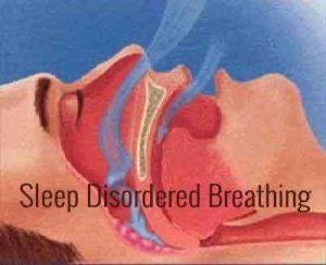Sleep Disordered Breathing – Standard Treatment Guidelines