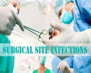 Surgical Site Infection Guidelines- American College of Surgeons and Surgical Infection Society