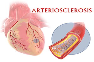 New unknown risk factor for arteriosclerosis identified