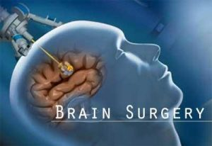 New smart needle to make brain surgery safer