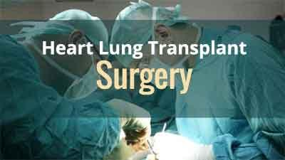 Kochi: Surgeons at Lisie Hospital perform first heart-lung transplant surgery