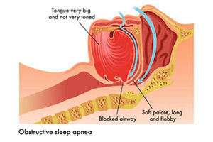 Slow-Release morphine safe for some obstructive sleep apnea patients