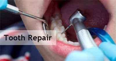 Alzheimer's drug may help boost natural tooth repair ...