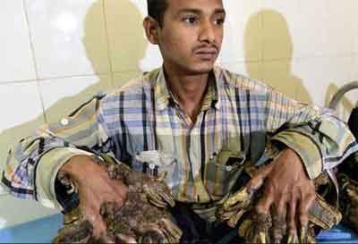Bangladesh Tree Man undergoes 16 surgeries for Epidermodysplasia Verruciformis