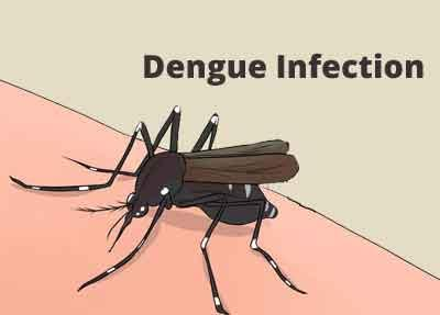 Why only some people develop life-threatening dengue infections