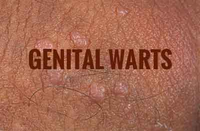 Genital Warts-Standard Treatment Guidelines
