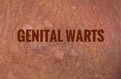 Pictures of vaginal warts Mild Vaginal Warts