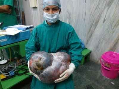 Manipal Surgeons remove 16kg ovarian tumour from 69 year old patient