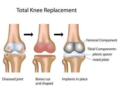 Doctors at VPS Lakeshore Hospital perform First 3D Knee ArmorCoat System total knee replacement surgery