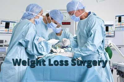 Diabetes patients at higher risk of bariatric surgery-associated complications