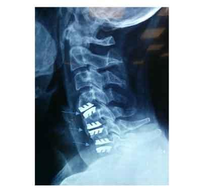 Apollo Surgeons perform first 3 level artificial cervical disc replacement surgery