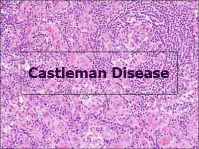 First diagnostic criteria for idiopathic multicentric castleman disease