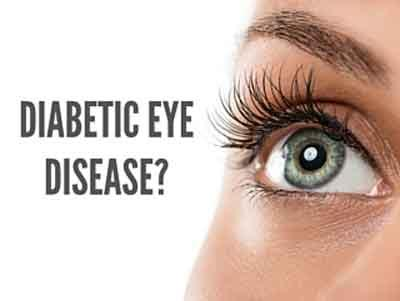 AOA practice guidelines for eye care in Diabetes