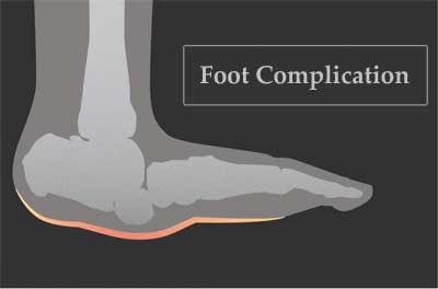 Study: Two-thirds of clinicians lack knowledge of diabetes related foot complication
