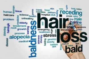 Hair loss related to seasons : Study